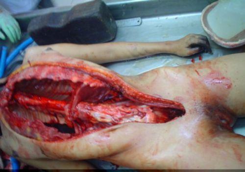 autopsias