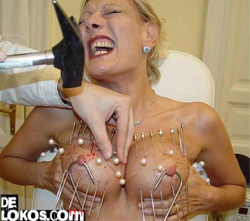 Mi secretaria se hace la acupuntura