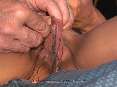 Torturas en el coño: labios vaginales cosidos