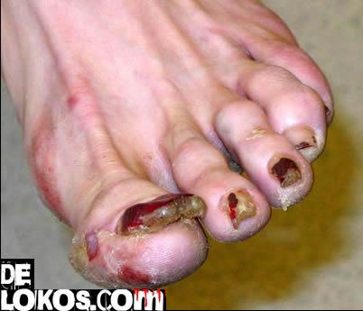 fetiche de los pies