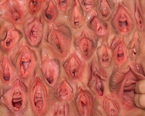 Pared Vaginal