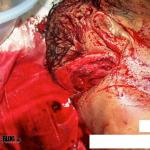 Imagen Asesinado Brutalmente con un machete