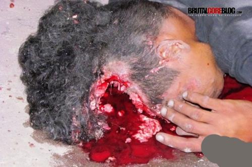 FOTOS GORE, accidente de moto con cabeza abierta