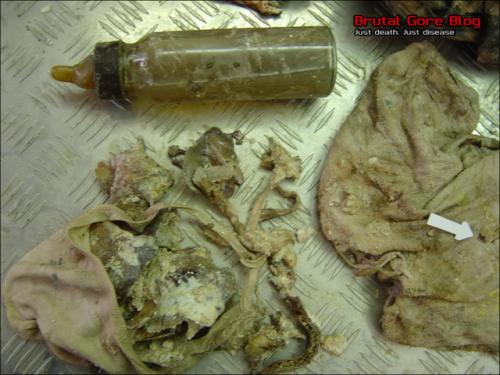 Fotos de cadaveres en descomposicion, una madre y su bebé podridos