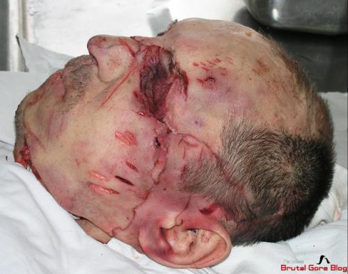 Hombre brutalmente asesinado y destrozado, muy gore