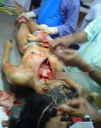 Autopsia a un mujer violada y asesinada