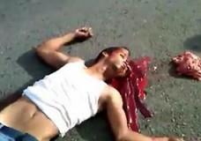 Imagen Los sesos fuera de su cabeza despues de un accidente de moto