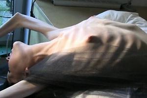 Anorexicas extremas