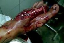 Se le ven los huesos del pie