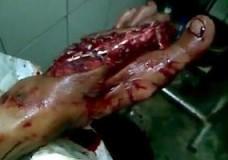 Imagen Se le ven los huesos del pie