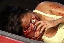 Mujer con el ojo fuera y la cara arrancada