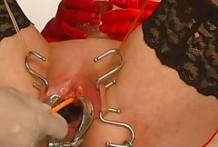 Inserción del catéter por su vagina