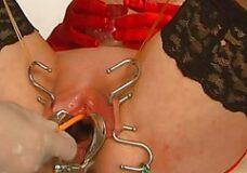 Imagen Inserción del catéter por su vagina