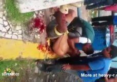 Imagen Piel arrancada de la pierna