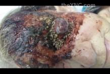 Horrible and Disgusting Maggot Infestation in Horribly Infected Eye theynccom thumb1379 218x147 - Horrible y asquerosos gusanos en los ojos