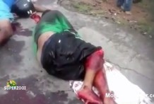 Leg nearly severed SUPERZOOI thumb3204 218x147 - Videos Fuertes, Pierna casi cortada