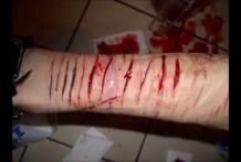Cortes sangrientos en el cuerpo con un cutter