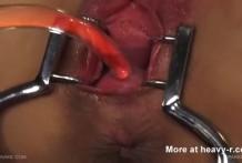 cuello uterino miniatura
