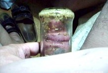 gusanos en la polla miniatura