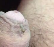 Imagen Mosquito pica en mi pene