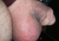 Penes y testículos maltratados extremadamente
