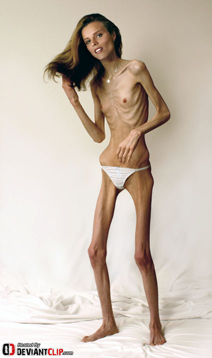 Free Porno De Mujeres Anorexicas 92
