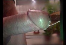 se folla la uretra con un cuchillo y se corta miniatura