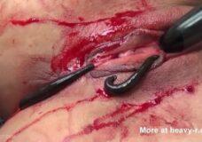 Imagen Sanguijuelas chupando sangre del coño