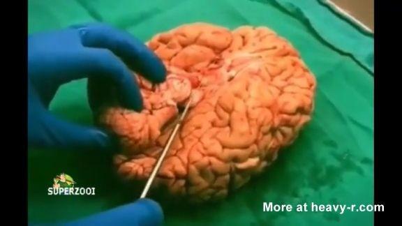 Cortando el cerebro humano Preparando el almuerzo en la morgue.